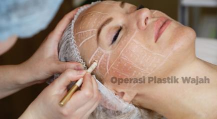 Operasi Plastik Wajah Terbaik dan Bagus, Berikut Daftar yang Terpopuler Tahun Ini!