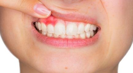 gusi gelap cara mengatasinya ada di klinik dokter gigi pik jakarta murah dan bagus