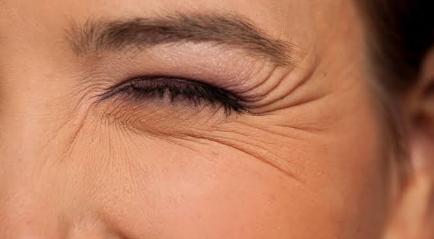 Hasil Botox Kerutan | Perawatan Anti Penuaan | Aman, Instan dan Memuaskan