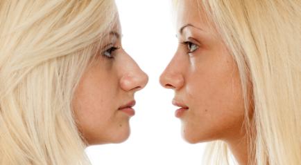 Cara Mengecilkan Hidung dengan Metode Medis dan Alami