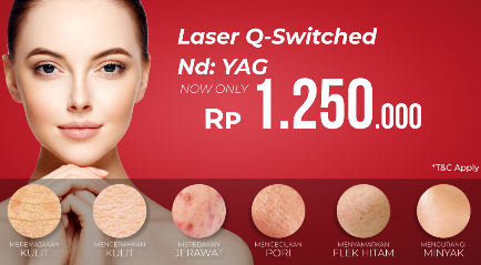 Promo Laser Q Switched Nd YAG