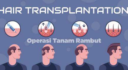 Operasi Tanam Rambut atau Hair Transplant Solusi Terbaik Atasi Kebotakan