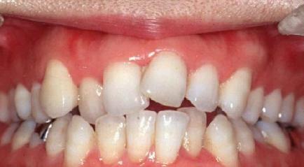 Tips dan Cara mengatasi Gigi Rata menurut Dokter Spesialis Gigi