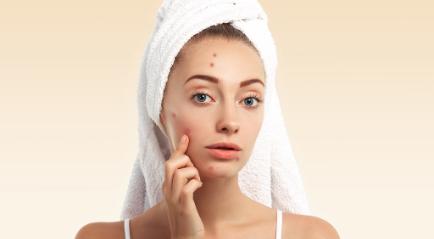 Cara Menghilangkan Jerawat Besar di Hidung yang Instan & Aman