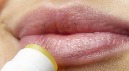 Cara Membuat Bibir Merah Alami dengan Laser Aman
