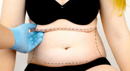 Operasi Plastik Perut (Tummy Tuck): Penjelasan, Manfaat hingga Resiko