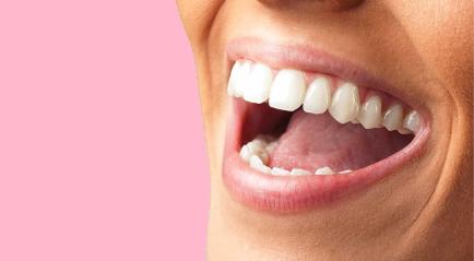 Veneer Gigi Atas Bawah   Murah, Bagus dan Aman