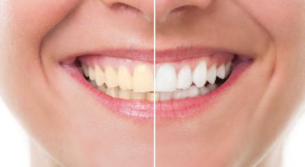 Cara / Treatment memutihkan Gigi dengan Instan dan Hasil Terbaik
