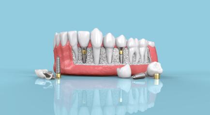Harga Implan Gigi di Klinik Gigi di Indonesia, Yakin Sudah Tahu?